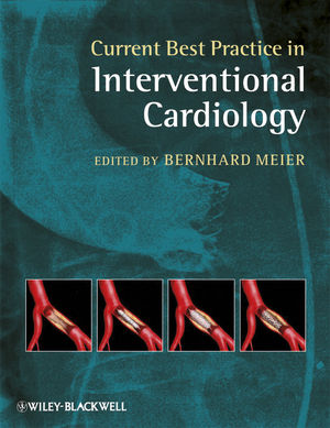 Current Best Practice in Interventional Cardiology (1444358138) cover image
