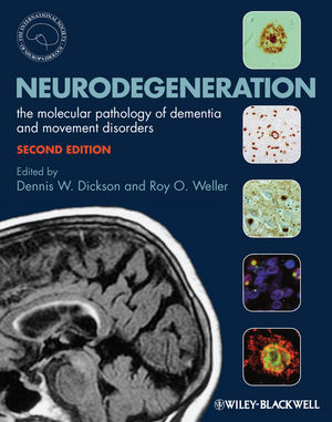 Neurodegeneration: The Molecular Pathology of Dementia and Movement Disorders, 2nd Edition (1405196939) cover image