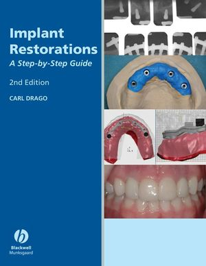 Implant Restorations: A Step-by-Step Guide, 2nd Edition (081382883X) cover image