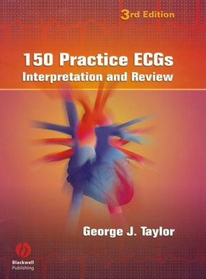 150 Practice ECGs: Interpretation and Review, 3rd Edition (140510483X) cover image