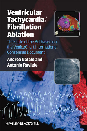 Ventricular Tachycardia / Fibrillation Ablation: The state of the Art based on the VeniceChart International Consensus Document (144433073X) cover image