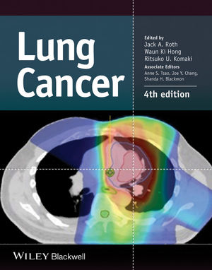 Lung Cancer, 4th Edition