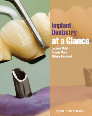 Implant Dentistry at a Glance (1444337440) cover image