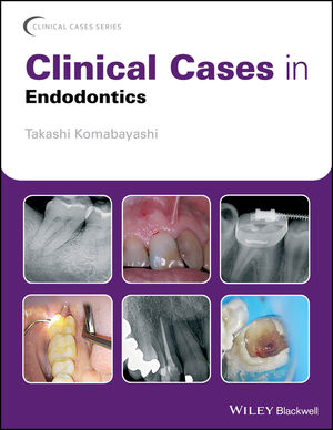 Clinical Cases in Endodontics (1119147042) cover image