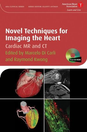 Novel Techniques for Imaging the Heart: Cardiac MR and CT (1444303244) cover image