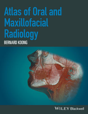 Atlas of Oral and Maxillofacial Radiology