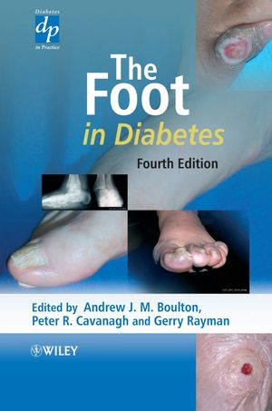 The Foot in Diabetes, 4th Edition (0470015047) cover image