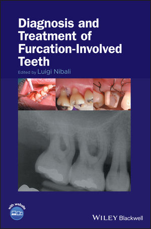 Diagnosis and Treatment of Furcation-Involved Teeth