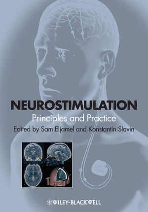 Neurostimulation: Principles and Practice (1118346351) cover image