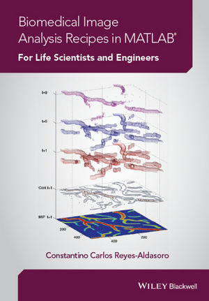 Biomedical Image Analysis Recipes in MATLAB: For Life Scientists and Engineers (1118657551) cover image