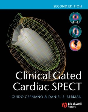 Clinical Gated Cardiac SPECT, 2nd Edition (1405131551) cover image