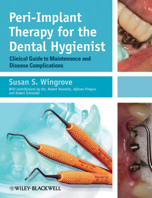Peri-Implant Therapy for the Dental Hygienist: Clinical Guide to Maintenance and Disease Complications
