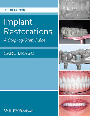Implant Restorations: A Step-by-Step Guide, 3rd Edition