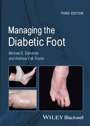 Managing the Diabetic Foot, 3rd Edition (1118708253) cover image