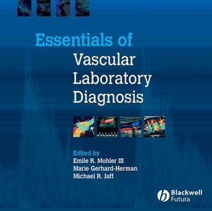 Essentials of Vascular Laboratory Diagnosis (1405122153) cover image