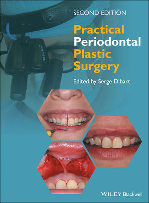 Wiley: Practical Periodontal Plastic Surgery, 2nd Edition - Serge ...