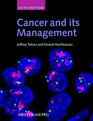 Cancer and its Management, 6th Edition