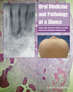Oral Medicine and Pathology at a Glance (1405199857) cover image
