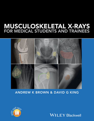 Musculoskeletal X-rays for Medical Students (EHEP003357) cover image