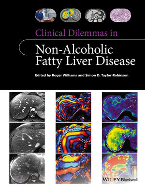 Clinical Dilemmas in Non-Alcoholic Fatty Liver Disease (1118924959) cover image