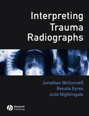 Interpreting Trauma Radiographs (047077715X) cover image