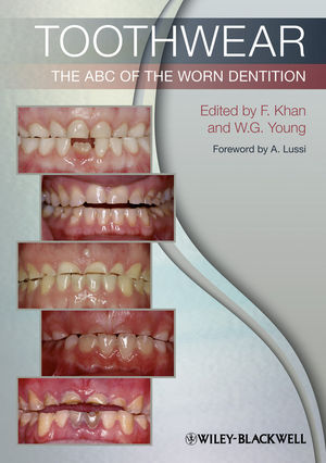 Toothwear: The ABC of the Worn Dentition