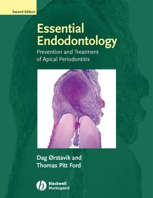 Essential Endodontology: Prevention and Treatment of Apical Periodontitis, 2nd Edition