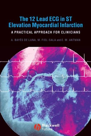 The 12 Lead ECG in ST Elevation Myocardial Infarction: A Practical Approach for Clinicians