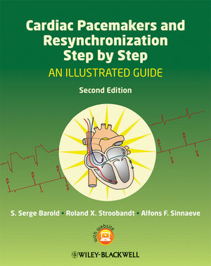 Cardiac Pacemakers and Resynchronization Step by Step: An Illustrated Guide, 2nd Edition (1444396161) cover image