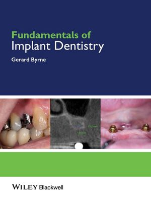Fundamentals of Implant <span class='search-highlight'>Dentistry</span>