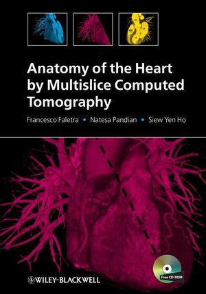 Anatomy of the Heart by Multislice Computed Tomography (1444300563) cover image
