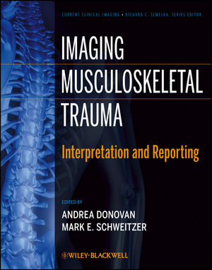 Imaging Musculoskeletal Trauma: Interpretation and Reporting (1118551664) cover image
