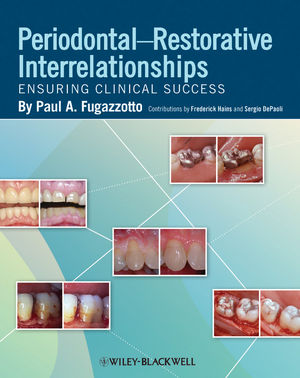 Periodontal-Restorative Interrelationships: Ensuring Clinical Success (0470959665) cover image