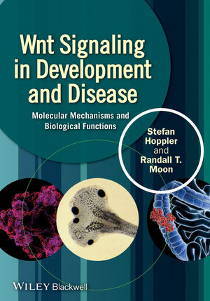 Wnt Signaling in Development and Disease: Molecular Mechanisms and Biological Functions