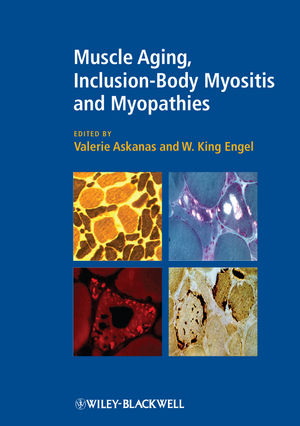 Muscle Aging, Inclusion-Body Myositis and Myopathies (1405196467) cover image