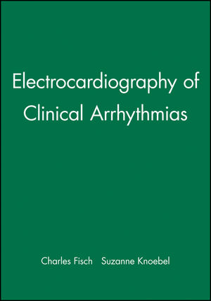 Electrocardiography of Clinical Arrhythmias