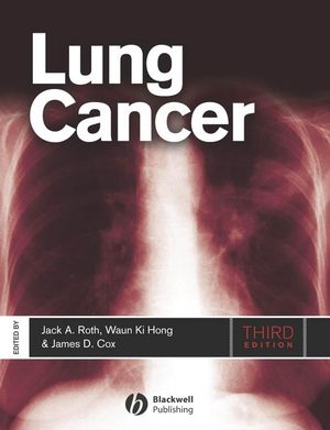 Lung Cancer, 3rd Edition