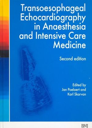 Transoesophageal Echocardiography in Anaesthesia and Intensive Care Medicine, 2nd Edition (072791796X) cover image