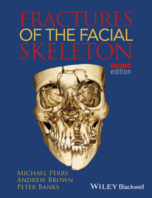 Fractures of the Facial Skeleton, 2nd Edition
