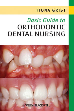 Basic Guide to Orthodontic Dental Nursing (1444348272) cover image
