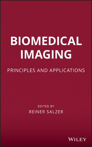 Biomedical Imaging: Principles and Applications (0470648473) cover image