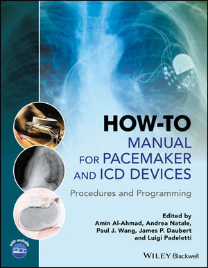 How-to Manual for Pacemaker and ICD Devices: Procedures and Programming