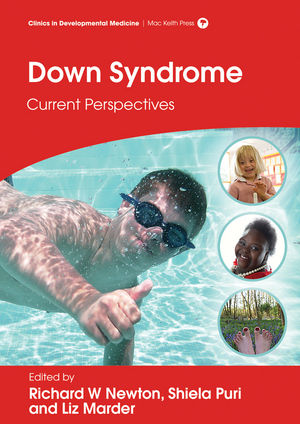 Down Syndrome: Current Perspectives
