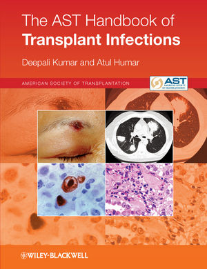 The AST Handbook of Transplant Infections