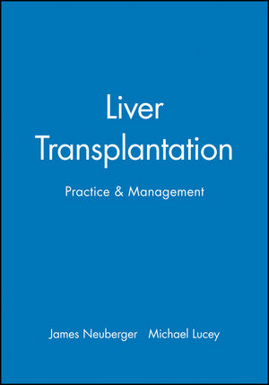 Liver Transplantation: Practice & Management
