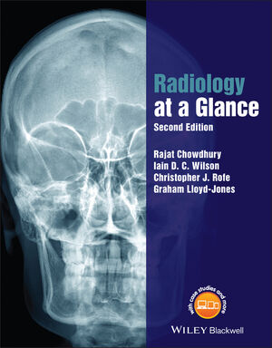 Radiology at a Glance, 2nd Edition
