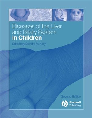 Diseases of the Liver and Biliary System in Children, 2nd Edition (1405140275) cover image