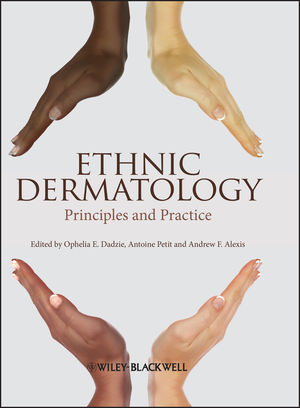 Ethnic Dermatology: Principles and Practice (0470658576) cover image