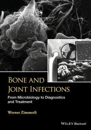 Bone and Joint Infections: From Microbiology to Diagnostics and Treatment (1118581776) cover image