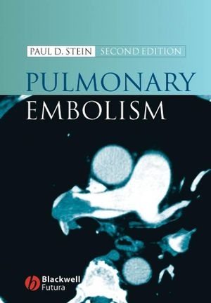 Pulmonary Embolism, 2nd Edition (1405138076) cover image